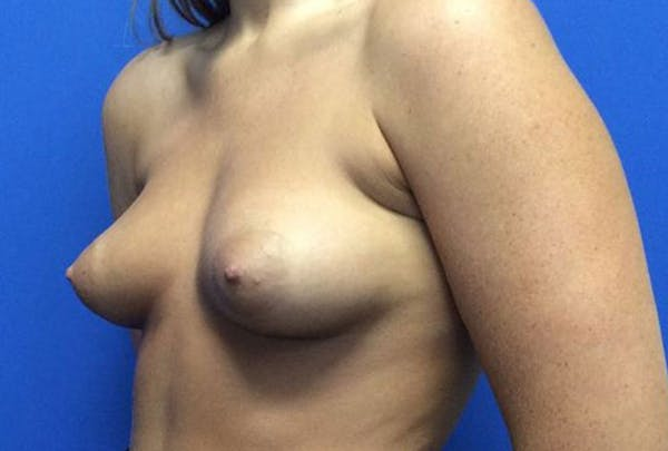 Breast Augmentation Gallery - Patient 4594837 - Image 3