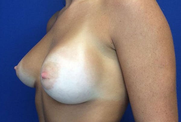 Breast Augmentation Gallery - Patient 4594837 - Image 4