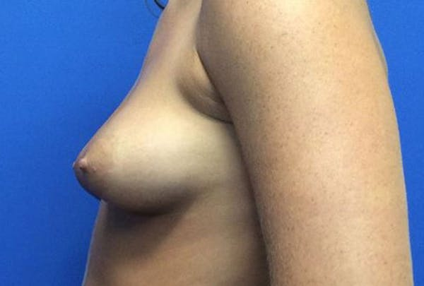 Breast Augmentation Gallery - Patient 4594837 - Image 9