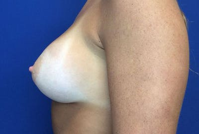 Breast Augmentation Gallery - Patient 4594837 - Image 10