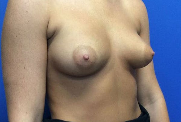 Breast Augmentation Gallery - Patient 4594837 - Image 7