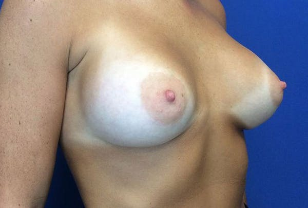 Breast Augmentation Gallery - Patient 4594837 - Image 8