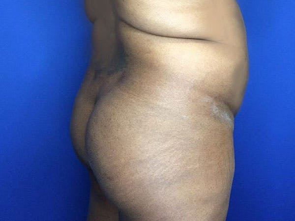 Liposuction Gallery - Patient 6280112 - Image 5