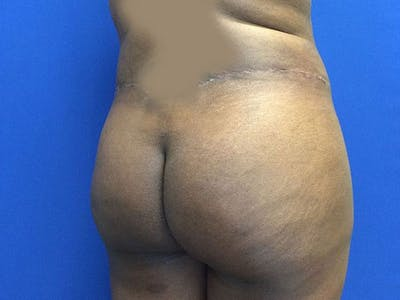 Liposuction Gallery - Patient 6280112 - Image 6