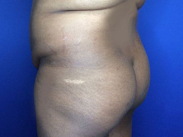 Liposuction Gallery - Patient 6280112 - Image 7