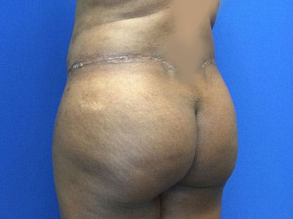 Liposuction Gallery - Patient 6280112 - Image 8