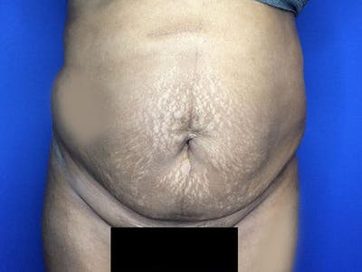 Liposuction Gallery - Patient 6280112 - Image 1
