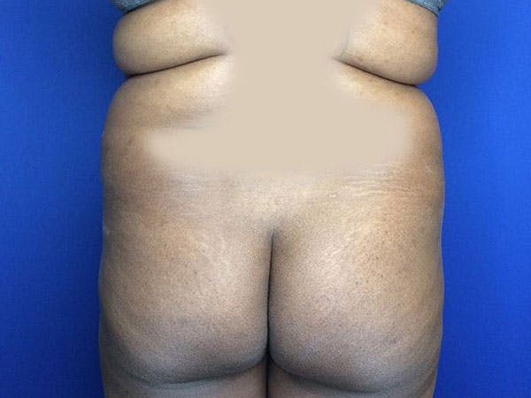 Liposuction Gallery - Patient 6280112 - Image 9