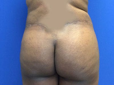 Liposuction Gallery - Patient 6280112 - Image 10