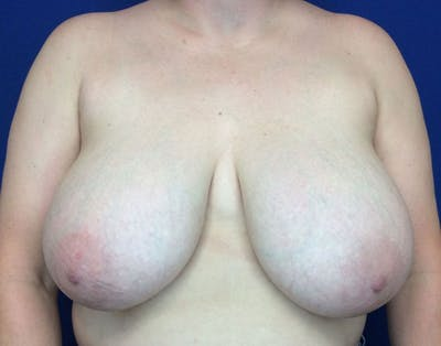 Breast Reduction Gallery - Patient 6388683 - Image 1