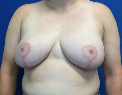 Breast Reduction Gallery - Patient 6388683 - Image 2