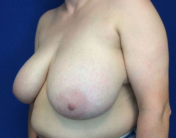 Breast Reduction Gallery - Patient 6388683 - Image 3