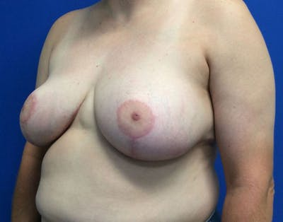 Breast Reduction Gallery - Patient 6388683 - Image 4