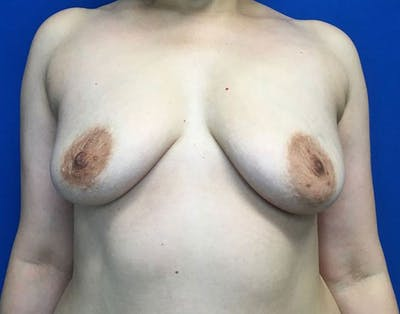 Breast Augmentation Gallery - Patient 6388717 - Image 1