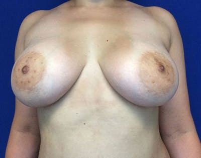 Breast Augmentation Gallery - Patient 6388717 - Image 2