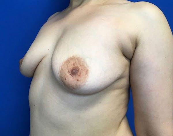 Breast Augmentation Gallery - Patient 6388717 - Image 3