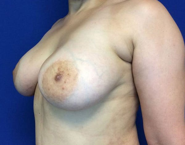 Breast Augmentation Gallery - Patient 6388717 - Image 4