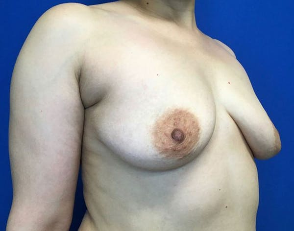Breast Augmentation Gallery - Patient 6388717 - Image 5