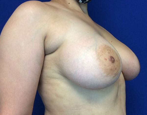 Breast Augmentation Gallery - Patient 6388717 - Image 6