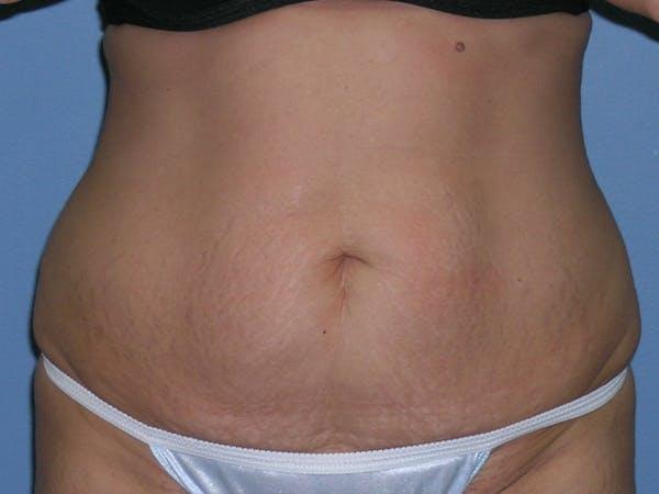 Tummy Tuck (Abdominoplasty) Gallery - Patient 6973077 - Image 1