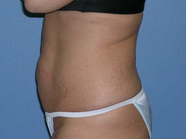 Tummy Tuck (Abdominoplasty) Gallery - Patient 6973077 - Image 3