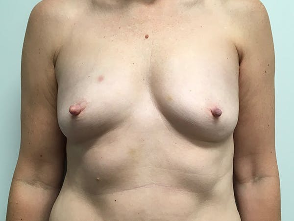 Breast Augmentation Gallery - Patient 7315984 - Image 1