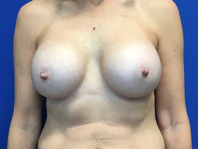 Breast Augmentation Gallery - Patient 7315984 - Image 2
