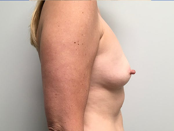 Breast Augmentation Gallery - Patient 7315984 - Image 3