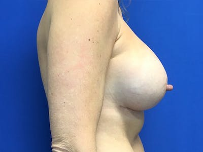 Breast Augmentation Gallery - Patient 7315984 - Image 4