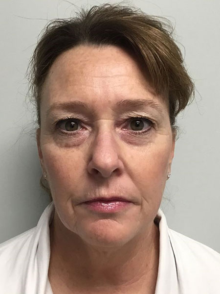 Blepharoplasty Gallery - Patient 7461841 - Image 15