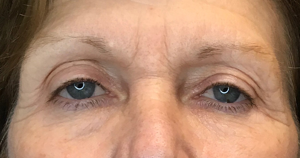 Blepharoplasty Gallery - Patient 7897782 - Image 16