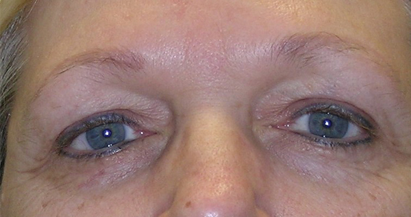 Blepharoplasty Gallery - Patient 7897783 - Image 17