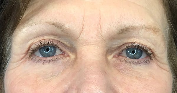 Blepharoplasty Gallery - Patient 7897782 - Image 2