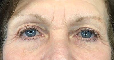 Blepharoplasty Gallery - Patient 7897782 - Image 2
