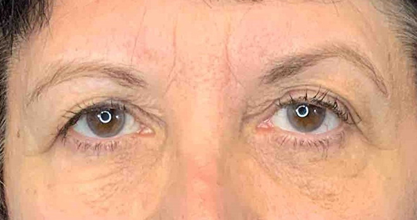 Blepharoplasty Gallery - Patient 7897784 - Image 18