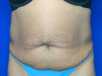 Tummy Tuck (Abdominoplasty) Gallery - Patient 7897832 - Image 1