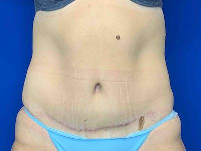 Tummy Tuck (Abdominoplasty) Gallery - Patient 7897831 - Image 2