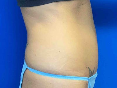 Tummy Tuck (Abdominoplasty) Gallery - Patient 7897830 - Image 4