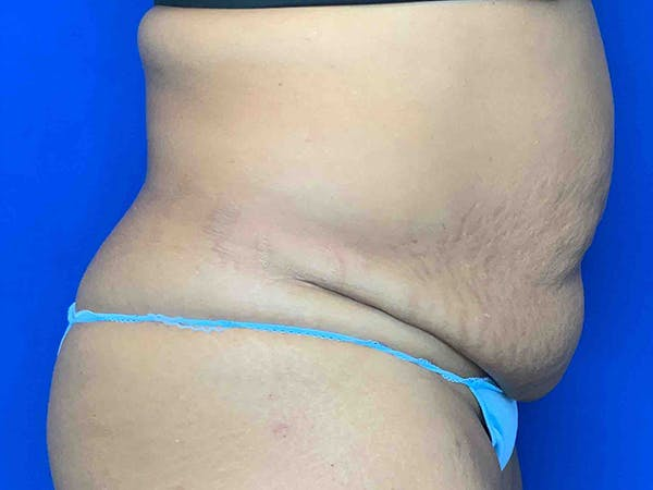 Liposuction Gallery - Patient 7897840 - Image 3