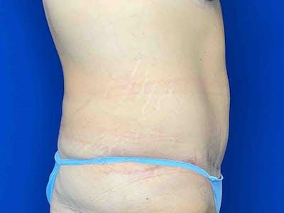 Tummy Tuck (Abdominoplasty) Gallery - Patient 7897831 - Image 4