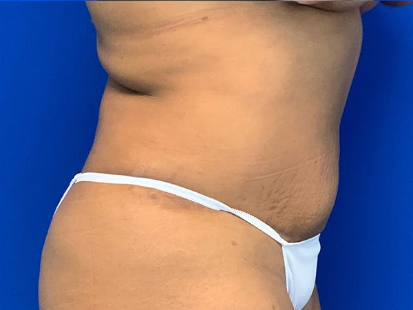 Liposuction Gallery - Patient 7897840 - Image 4
