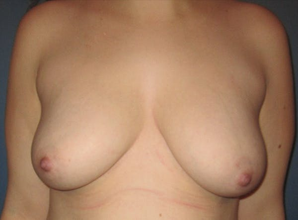 Breast Implant Reconstruction Gallery - Patient 8012494 - Image 1