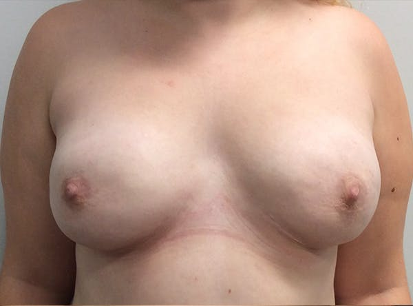 Breast Implant Reconstruction Gallery - Patient 8012494 - Image 2