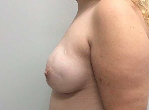 Breast Implant Reconstruction Gallery - Patient 8012494 - Image 6