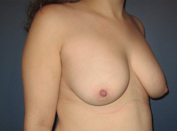 Breast Implant Reconstruction Gallery - Patient 8012494 - Image 7