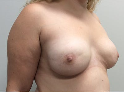 Breast Implant Reconstruction Gallery - Patient 8012494 - Image 8