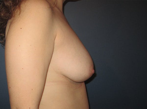 Breast Implant Reconstruction Gallery - Patient 8012494 - Image 9