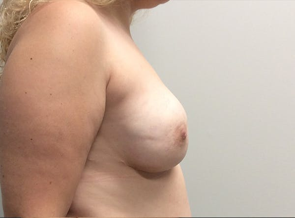 Implant Reconstruction Gallery - Patient 8012494 - Image 10