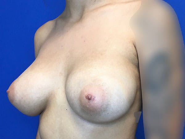 Breast Augmentation Gallery - Patient 8059691 - Image 4