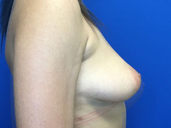 Breast Augmentation Gallery - Patient 8059691 - Image 7